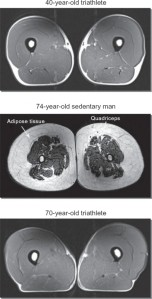Muscles, Athletes, MRI, Ageing, Muscle Mass, Bone Density