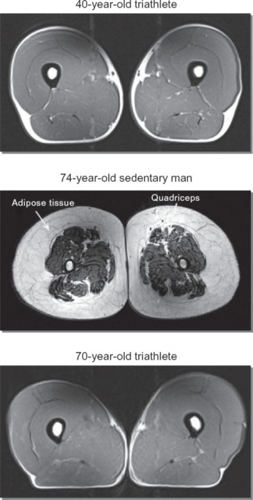 Muscles, Athletes, MRI