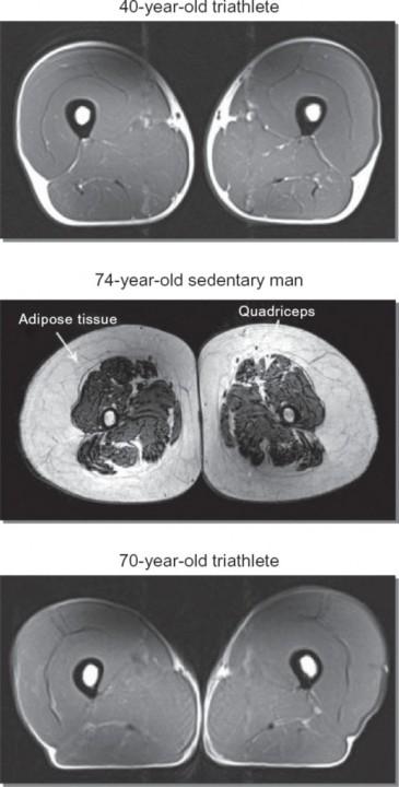 Muscles, Athletes, MRI